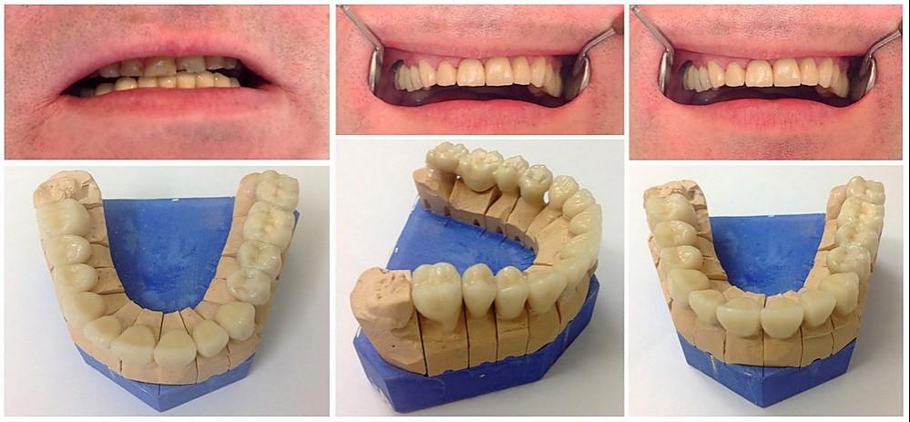 hambaravi enne ja pärast